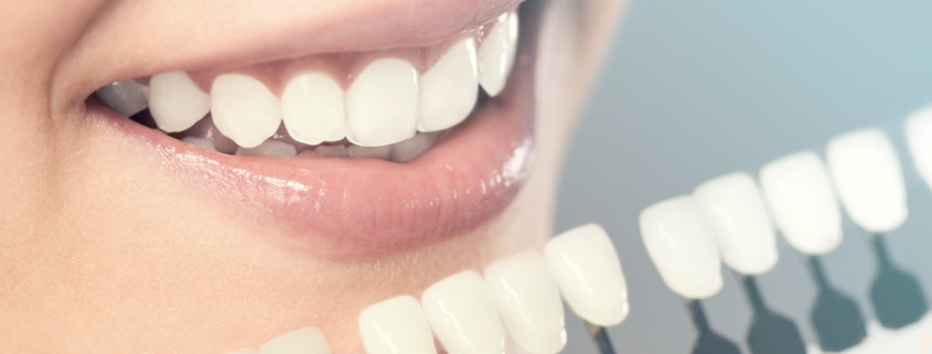 facette dentaire implantologie dentaire Dr Michel Boeschlin