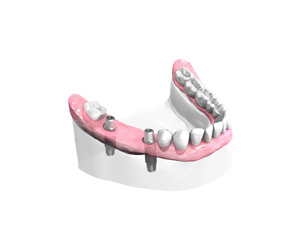 pose des implants dentaires