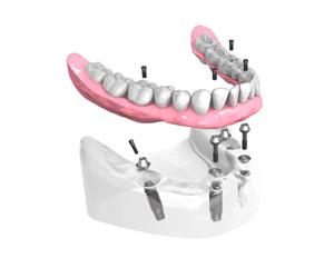 mise en place d'un implant dentaire Dentiste Michel Boeschlin à Strasbourg