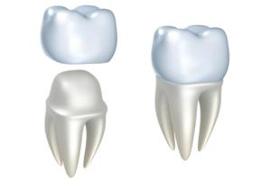 couronne dentaire en céramique dentiste Strasbourg