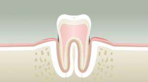 parodontologie dentsite Dr Boeschlin Strasbourg