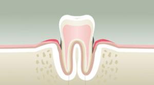parodontologie dentiste strasbourg